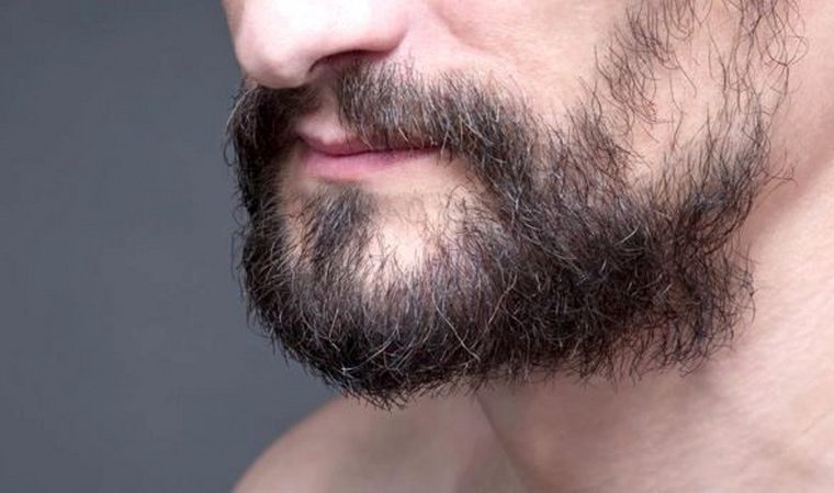 barba-a-chiazze_800x449